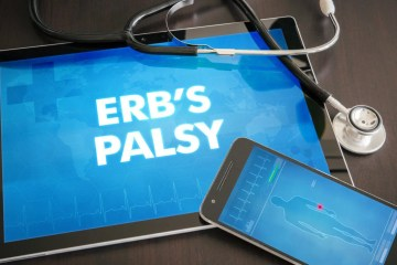 What is Erb's Palsy? Everything You Need to Know