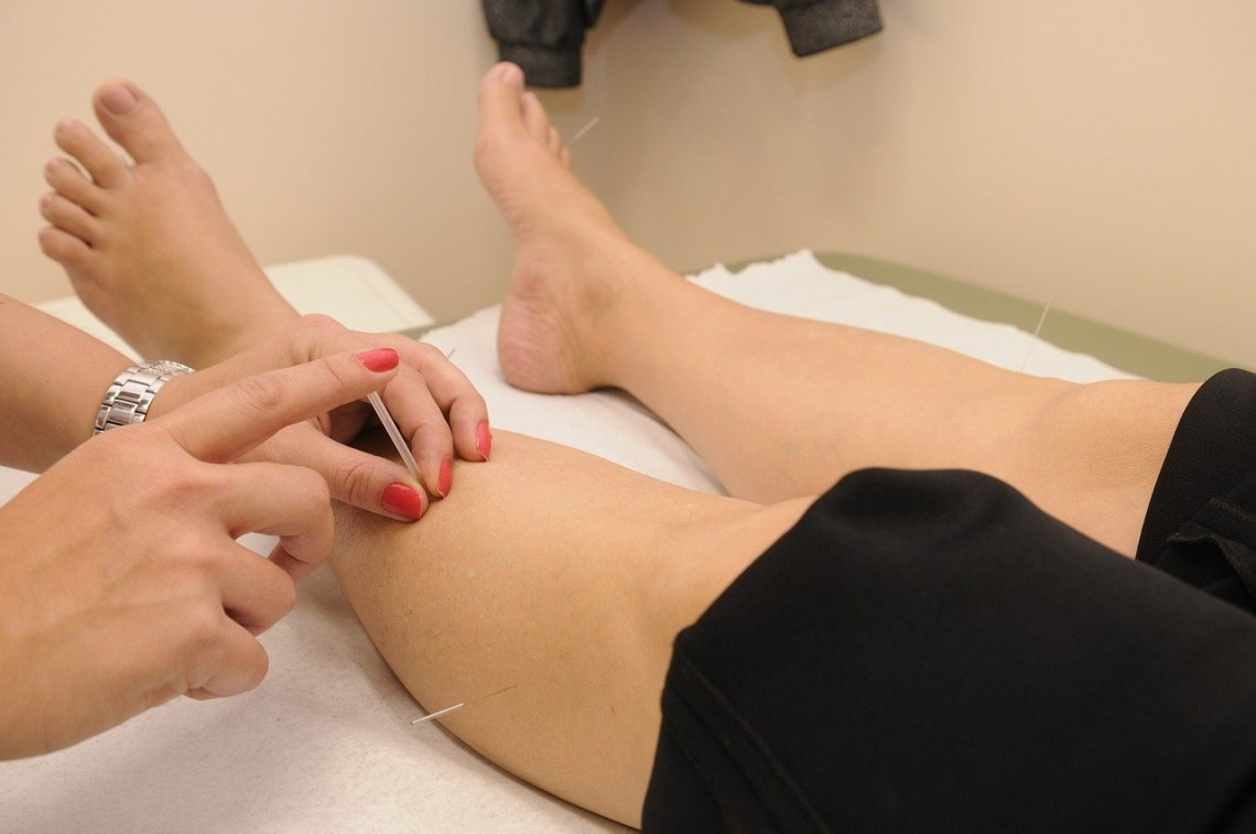 acupuncture therapy, needle being inserted into leg