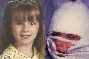 Samantha Reckis and her parents a total of $109 million, including interest, a Plymouth Superior Court jury decided on Wednesday. Samantha was 7 when she was given Motrin brand ibuprofen, family attorney Brad Henry said. She suffered a rare side effect known as toxic epidermal necrolysis and lost 90 percent of her skin and was blinded.