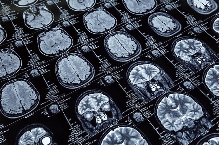 NMC-neuroradiology