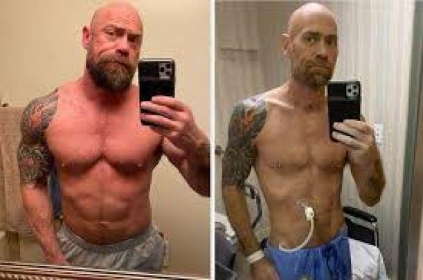Coronavirus survivor, 43, shares shocking photo showing 50-lb weight loss