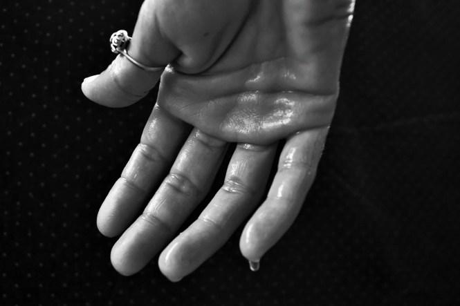 Sweaty clammy hands