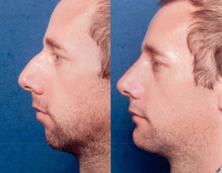 """the nose clinic 