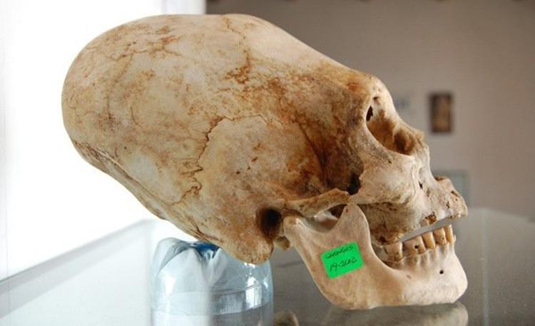 Déterré: 4 des crânes les plus étranges jamais découverts