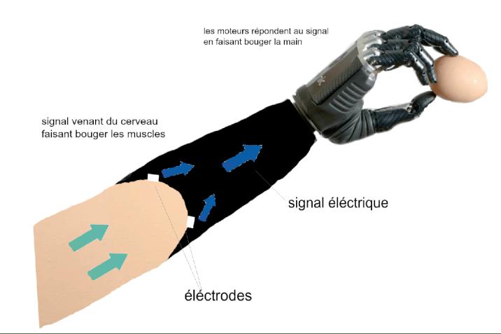 Fonctionnement main bionique ©Caroline Formosa