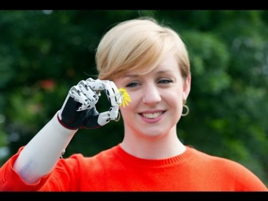 Nicky Hashwell - Bebionic hand ©https://www.google.com/imgres