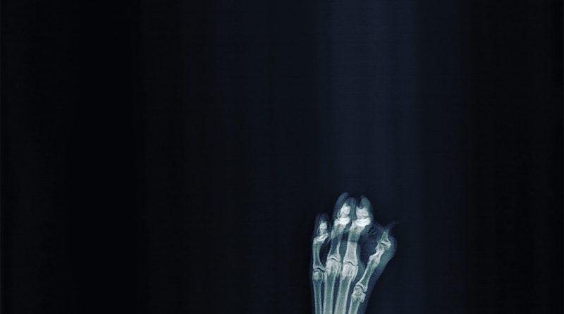Dora Lachaise Bone Collector cover