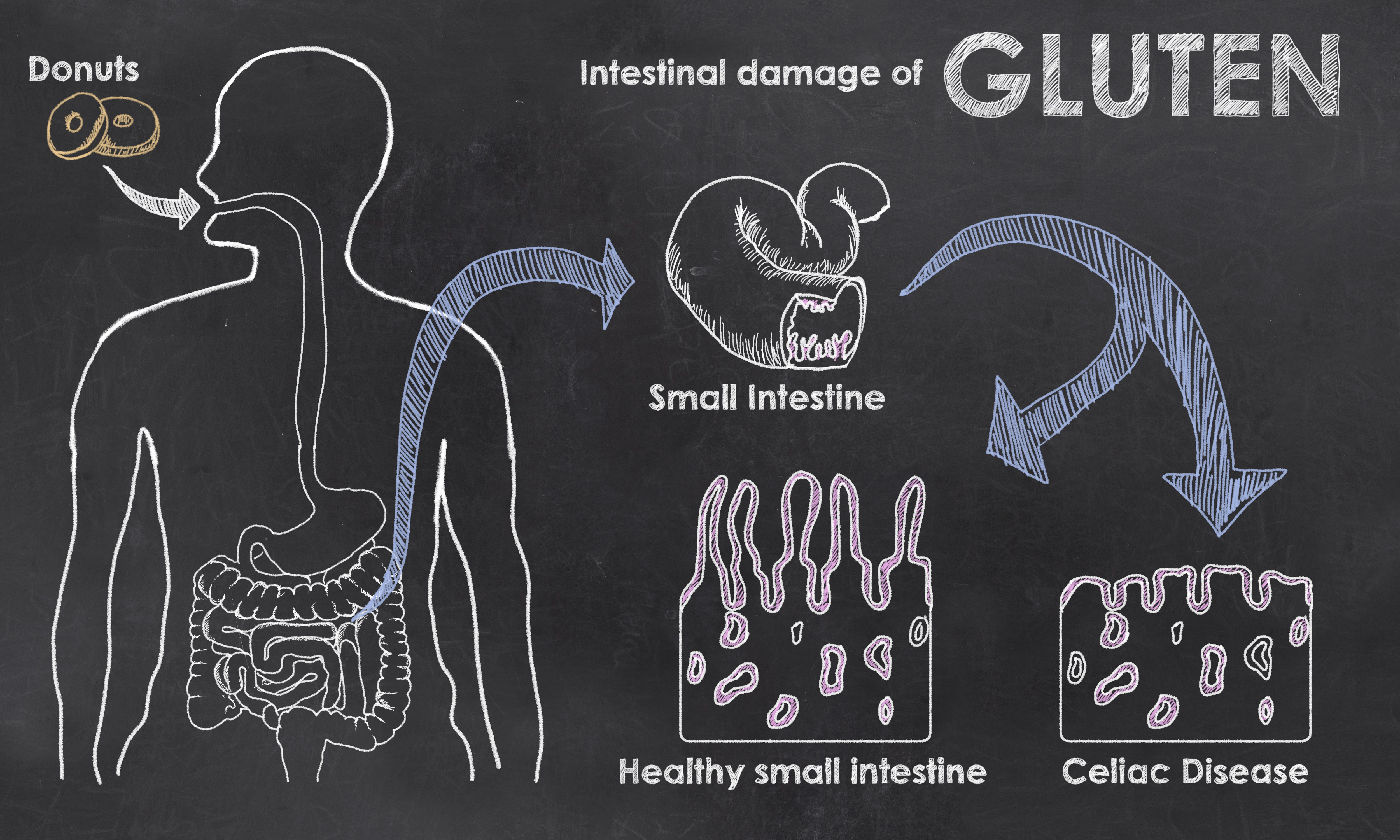 Turning On Celiac Disease | The PediaBlog
