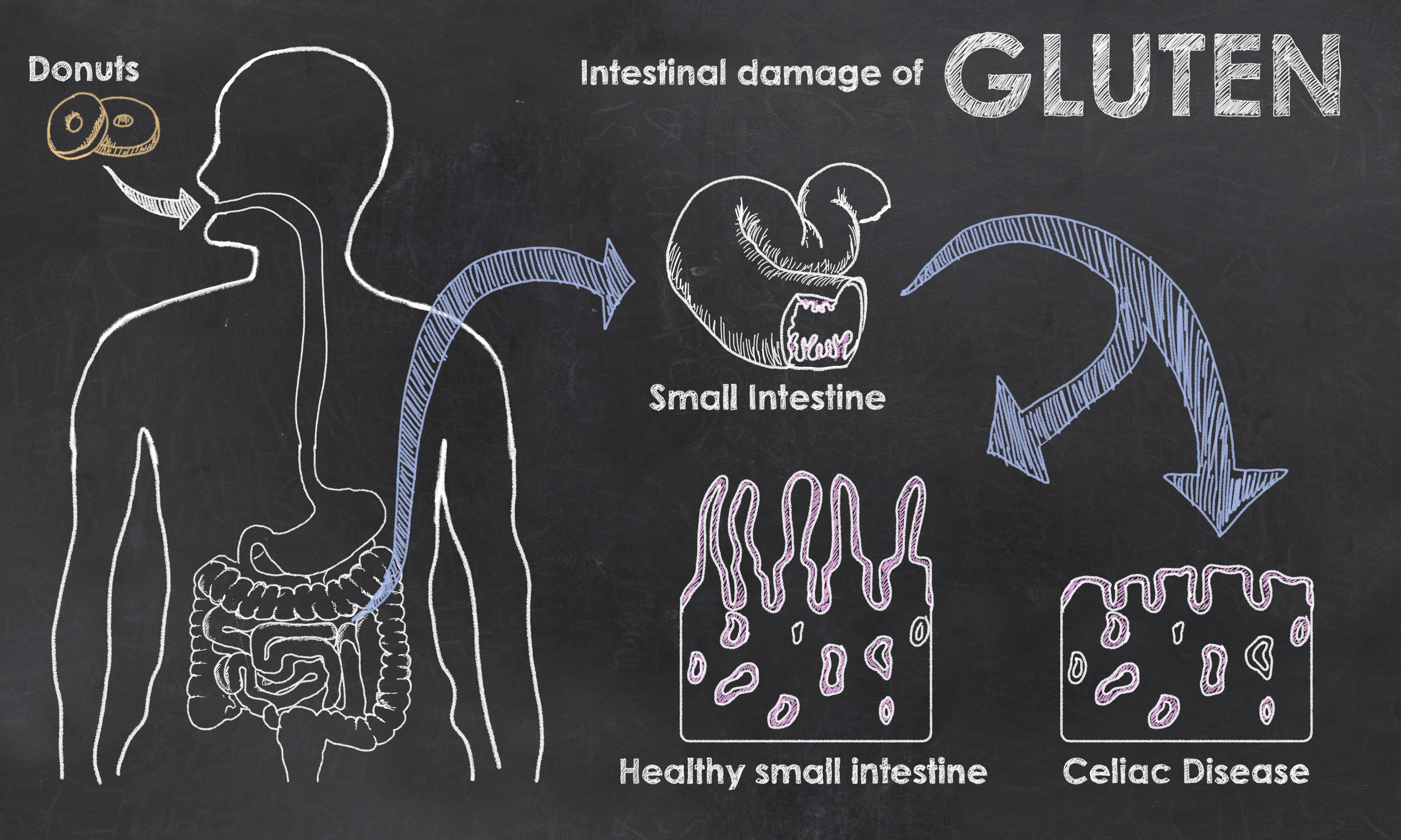 Turning On Celiac Disease