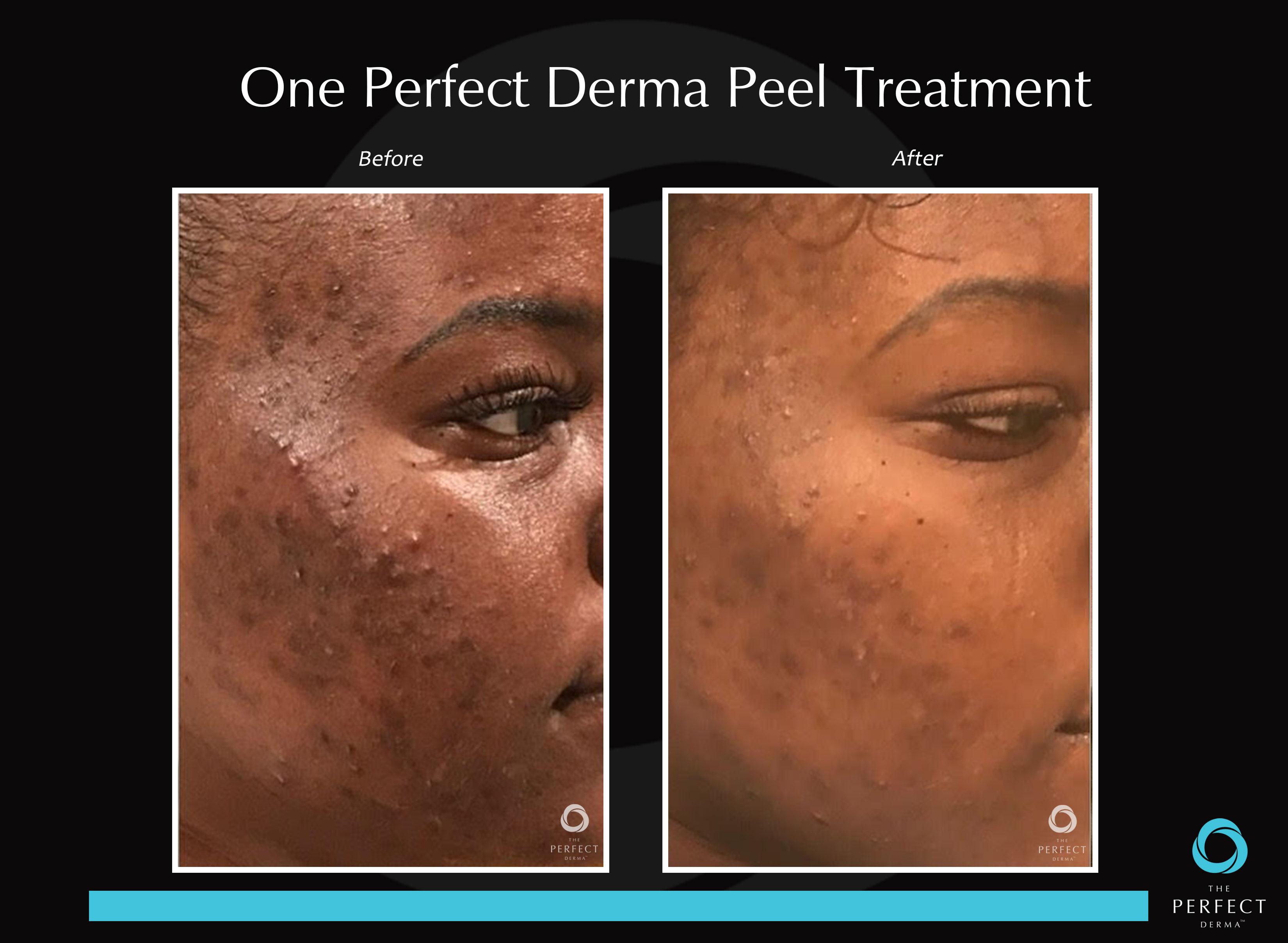 The Perfect Derma Peel
