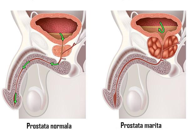 prostata marita