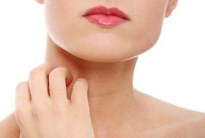 Cum se tratează dermatita cu remedii naturiste?