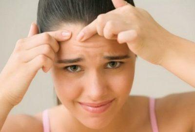 Cum se elimină petele de acnee cu remedii naturiste?