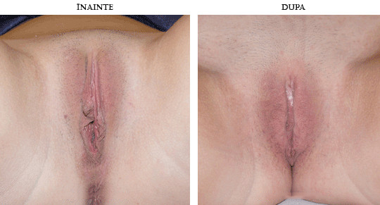 labioplastie-operatie-inainte-si-dupa