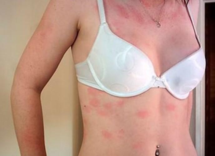 Dermatomiozita: Cauze, manifestari si tratament