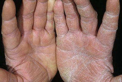 Cum se hidrateaza mainile uscate?