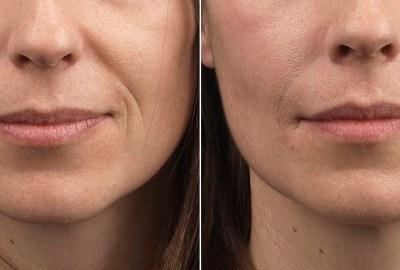 De ce este bun balsamul pentru buze? – beneficii balsam de buze