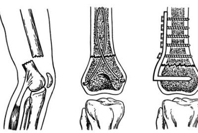 Fractură de platou tibial: cauze, simptome și cum are loc recuperarea?
