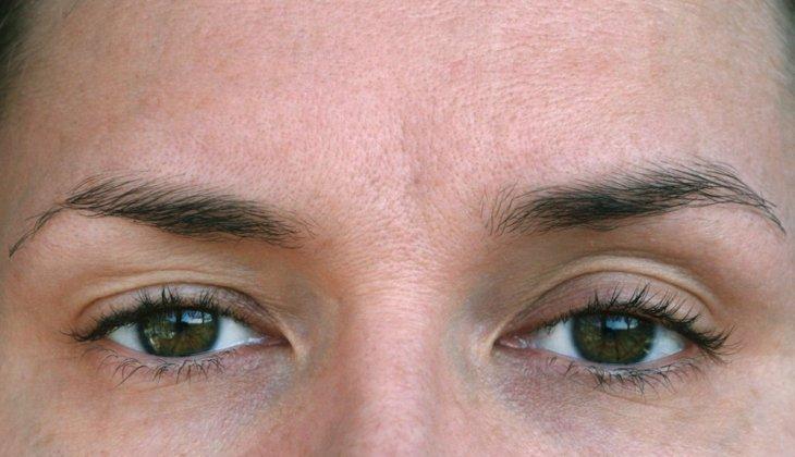 Principalele afectiuni ale ochiului | zemcenter.ro