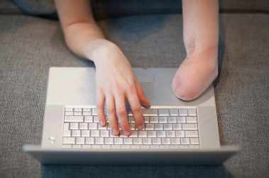 A photo of a light-skinned person typing at a laptop keyboard. The person has an amputated stump on their left arm, with their right hand typing on the keys.