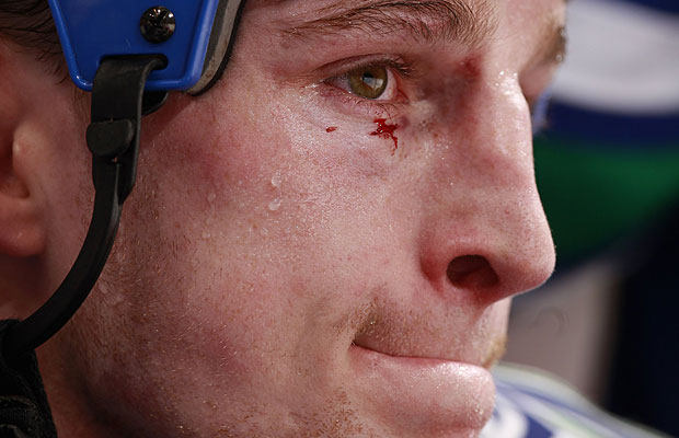 Rick Rypien sports a cut eye during the game against the Ottawa Senators at General Motors Place on March 13, 2010 in Vancouver, British Columbia, Canada.