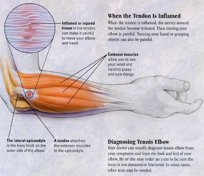 Tennis Elbow (Lateral Epicondylitis, Elbow Pain) Treatment ...
