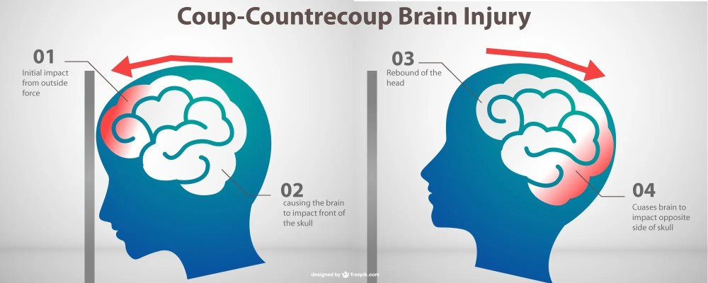medium resolution of traumatic brain injury tbi treatment and recovery therafit rehab physical therapy