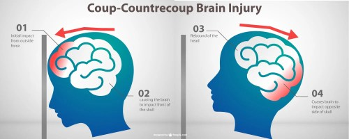 small resolution of traumatic brain injury tbi treatment and recovery therafit rehab physical therapy