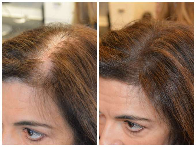 scalp color for thinning hair 2019 – forensicanth