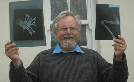 John Challis with the first x-rays from Livingstonia and Ekwendeni