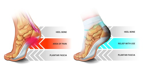 small resolution of everything you need to know about plantar fasciitis