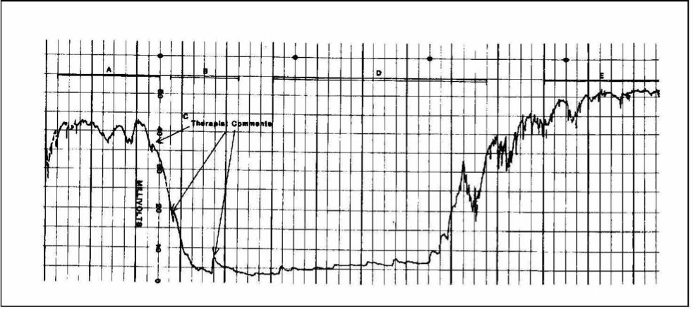 """Figure 2. Bioelectronic monitoring of DC body potential during hypnosis: The record of a highly intelligent, normal 24-year-old female subject during her first hypnotic induction. Millivolts are recorded on the vertical access and a timescale of 0.5 in./min on the horizontal access: (A) normal default state of consciousness; (B) drop in DC potential during relaxation; (C) momentary response to therapist remarks; (D) characteristically low activity during catalepsy; (E) typical awakening pattern at higher electronic level than (A). From """"Experiencing Hypnosis: Therapeutic Approaches to Altered States,"""" by M. H. Erickson and E. L. Rossi, 1981/2014. Re-prined in E. Rossi, R. Erickson–Klein, and K. Rossi (Eds.), The Collected Works of Milton H. Erickson (Vol. 12, p. 65). Phoenix, AZ: The Milton H. Erickson Foundation Press. Reproduced with permission."""