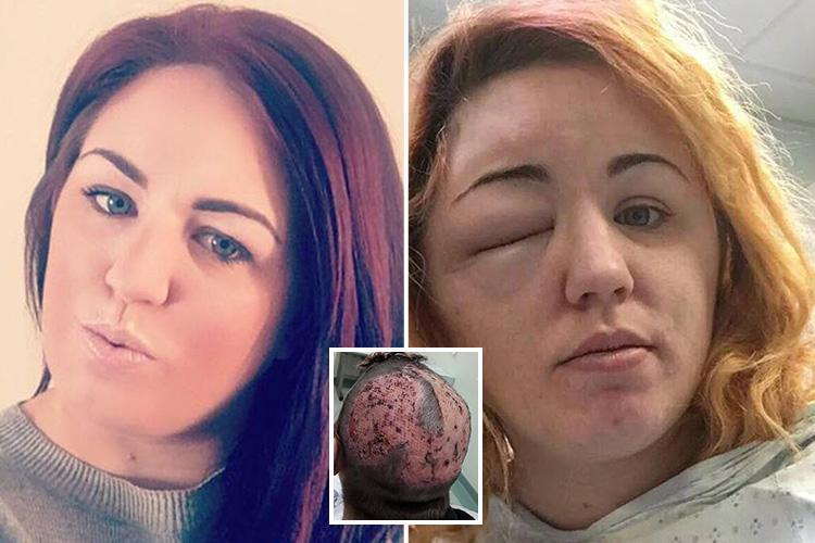Mum Who Tried To Dye Her Hair In Unicorn Colours Is Left
