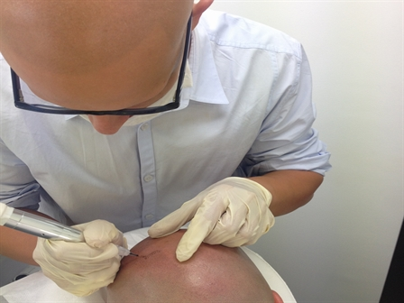 The Shadow Clinic is one of the best solutions & treatment for all types of male hair loss in Auckland, NZ. We are providing all types of hair loss, including receding hairline, hiding hair loss, alopecia, hair tattoo and many more at affordable prices.