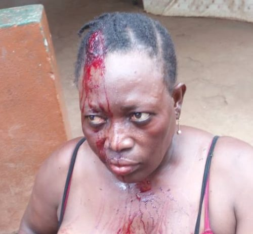 Victim of APC office violence2