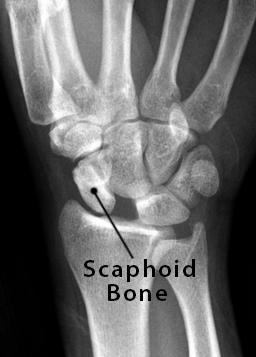 Scaphoid Bone Definition, Location, Anatomy, Diagram | The