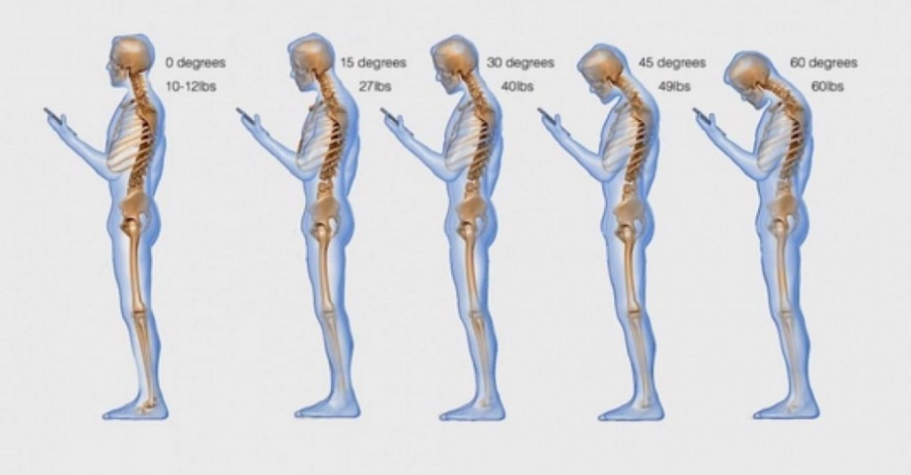 cell-phone-text-messaging-posture-1030x538