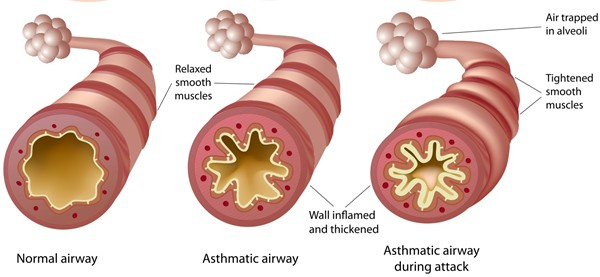 Asthma Cardiff University