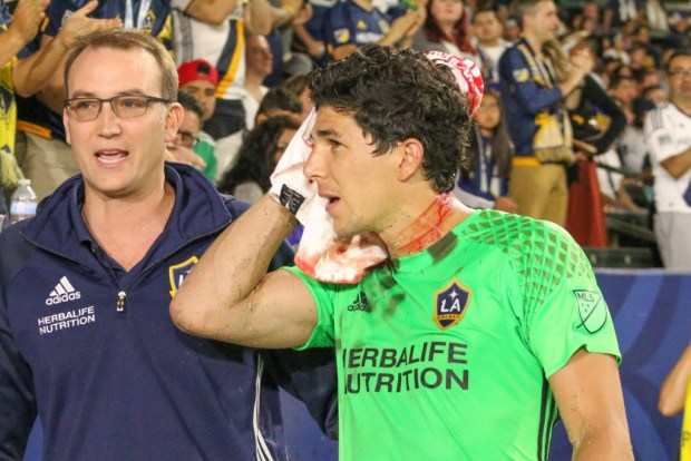 Brian Rowe leaves the field with a head injury during 1-1 tie Saturday night against the Colorado Rapids at StubHub Center. Photo taken by Jorge Galves for The Stoppage Time 8/13/16