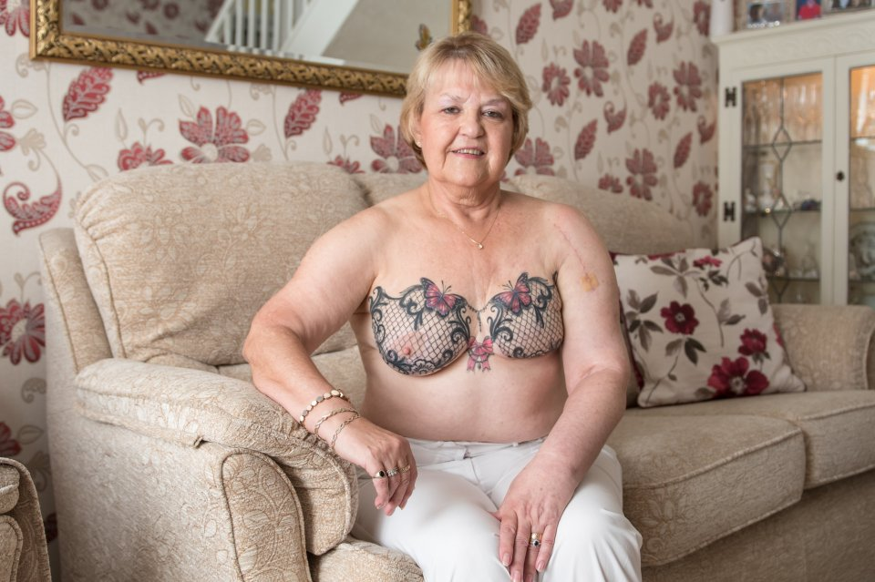 Greatgran who beat breast cancer has a beautiful lace bra TATTOOED over her mastectomy scars