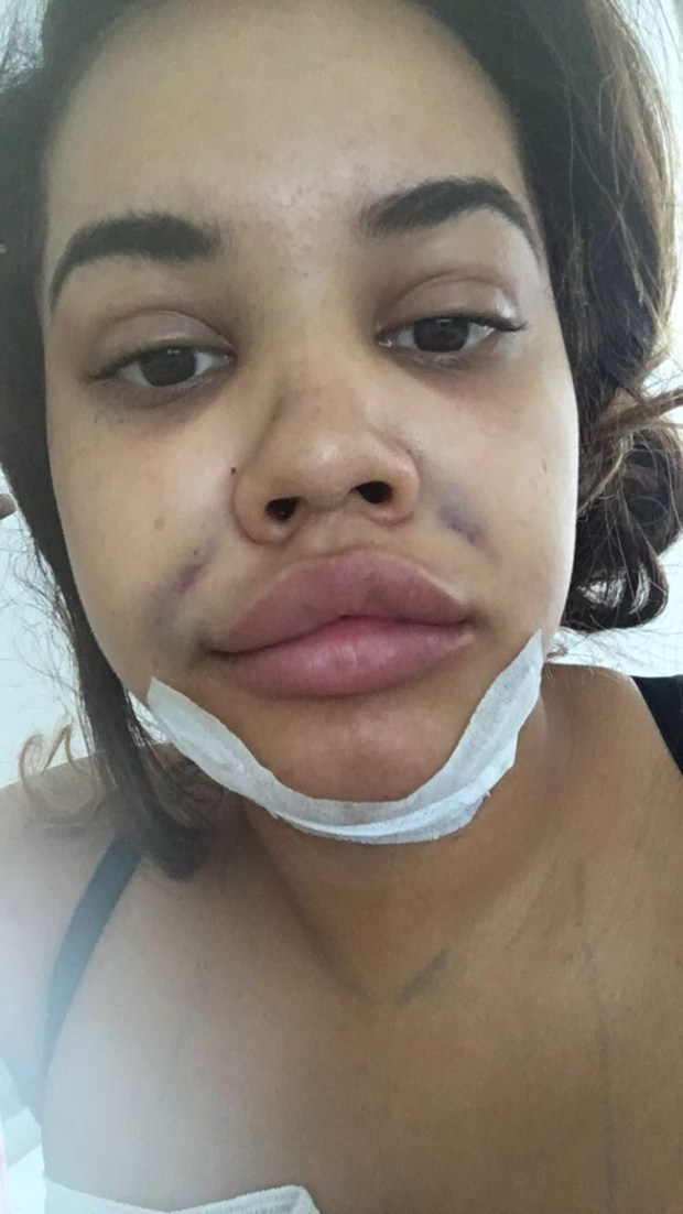 Lateysha Grace has undergone a whole plethora of surgical procedures to achieve her dream look
