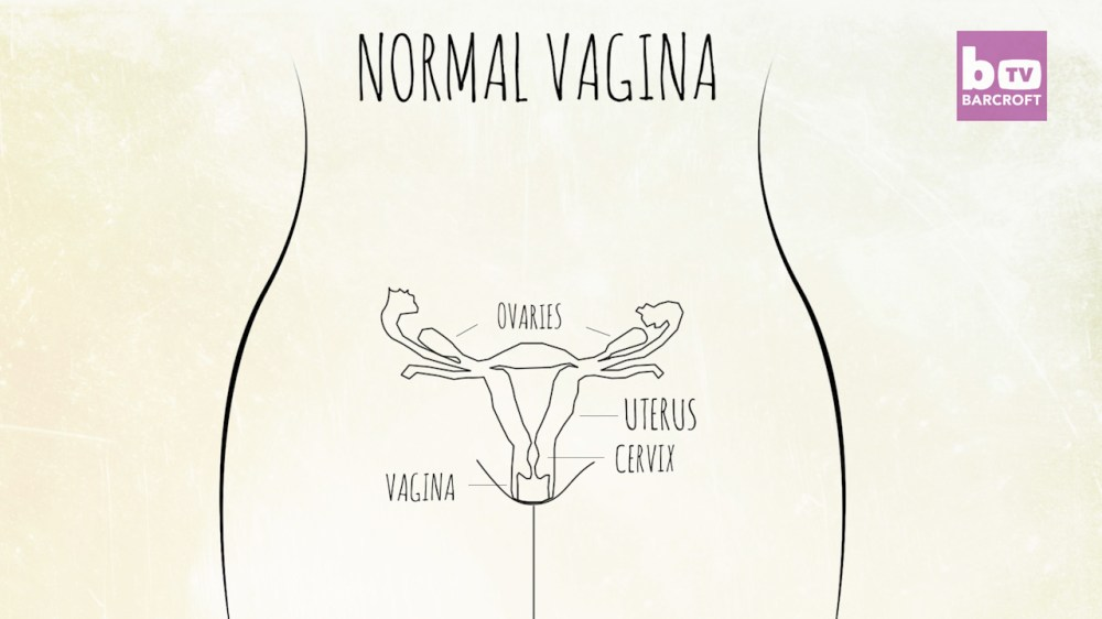 medium resolution of in contrast this is a diagram of a normal fully formed female reproductive