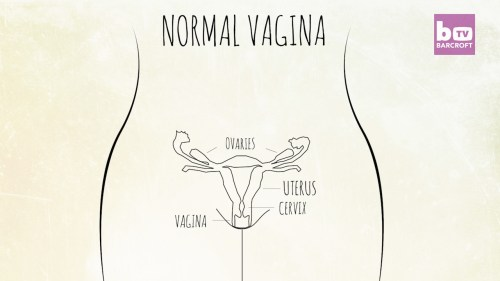 small resolution of in contrast this is a diagram of a normal fully formed female reproductive