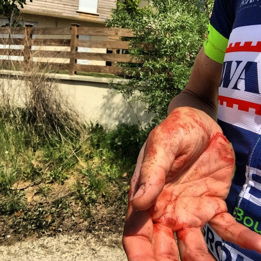 Yoann Offredo shared this picture of his bloodied hand after being beaten upby thugs