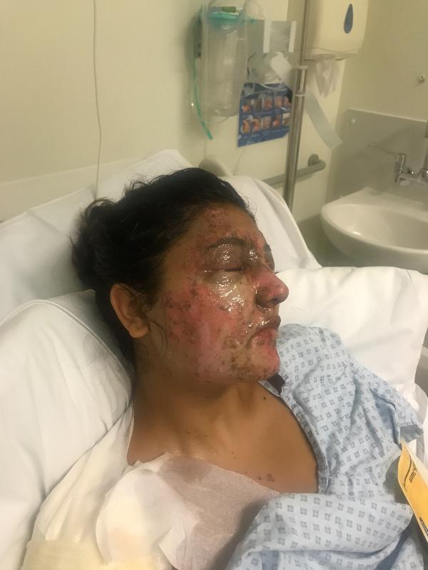 The student has had skin grafts after suffering burns to her face and body