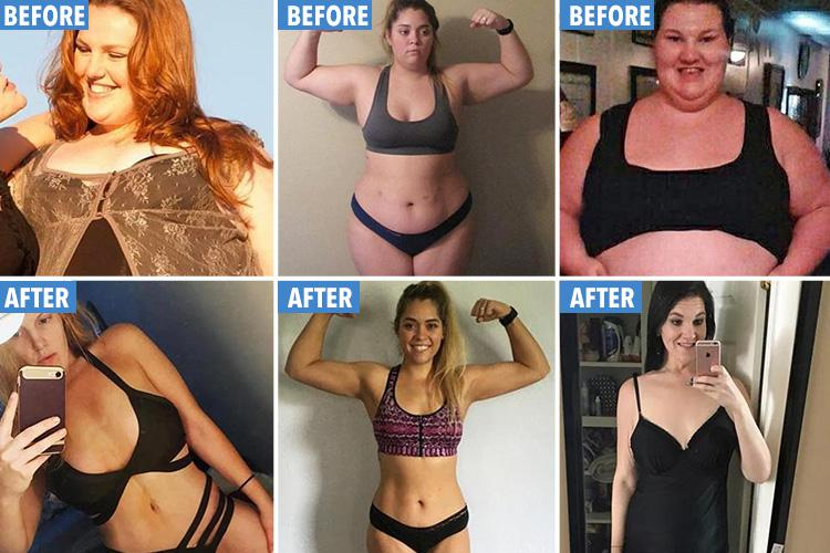 How to manage skin during weight loss