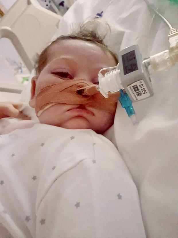 Little Charlie has the incredibly rare genetic condition mitochondrial DNA depletion syndrome