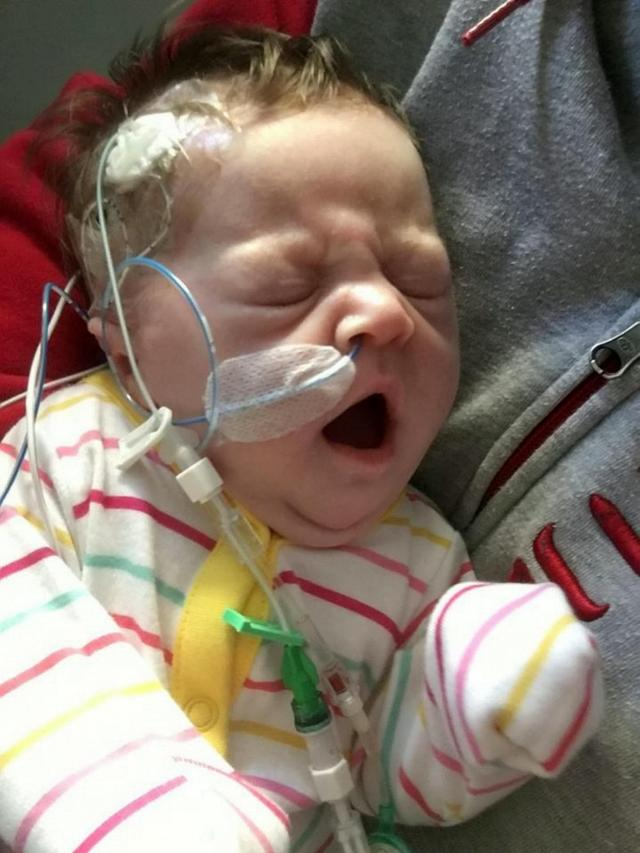 Her mum shared the gory photo in a bid to raise awareness of the rare condition which affects 1 in 3,000 babies