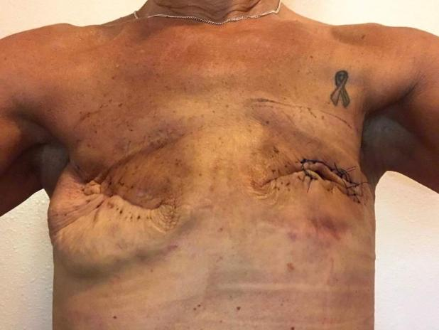 She had implants put in straight after her mastectomy but they became infected
