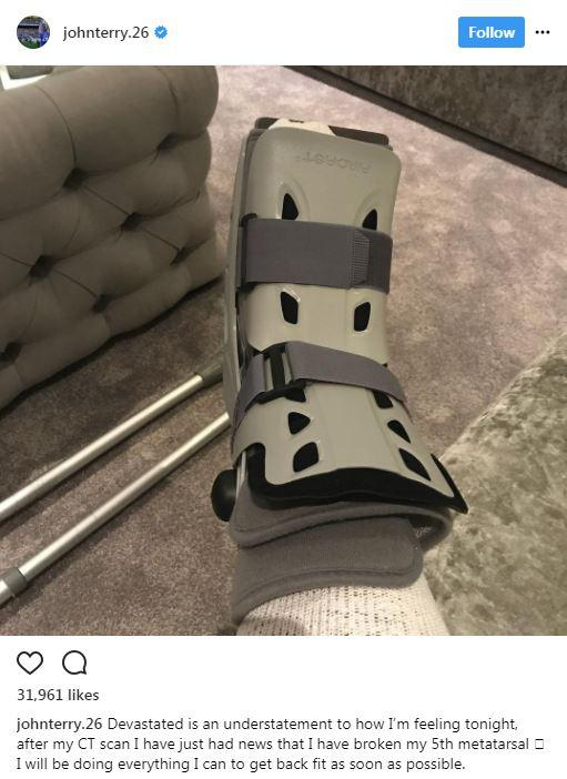 John Terry posted a picture on Instagram of his leg in a boot